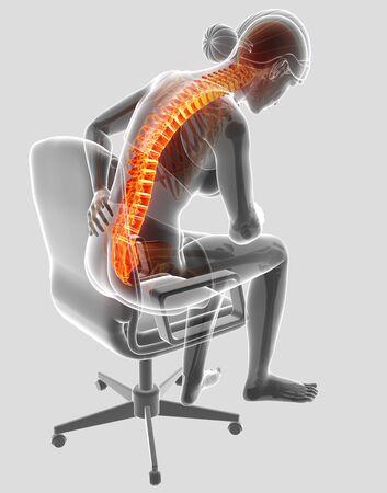 ortopedia: Ilustración 3D de Mujer Sintiendo el dolor de espalda