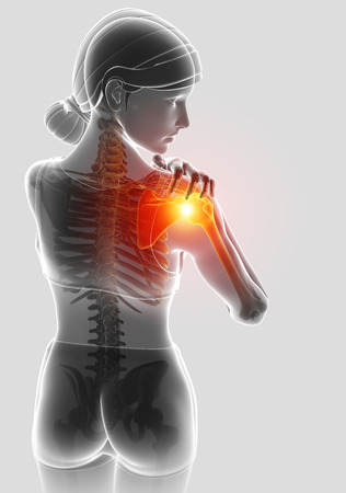 3d Illustration of Female Feeling the Shoulder Pain