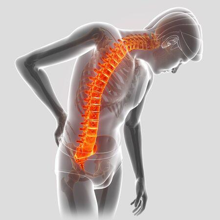 ortopedia: 3D Illustration of male Feeling the back pain