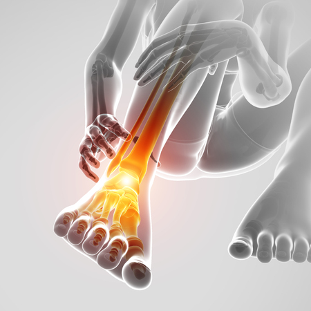 3d Illustration of Male foot with ankle pain Stock Photo