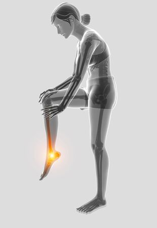 3d Illustration of Female foot with ankle pain Stock Photo