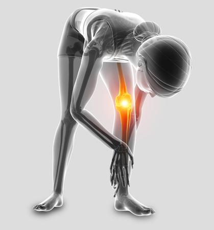 3d illustratie van vrouwen voelen knie pijn