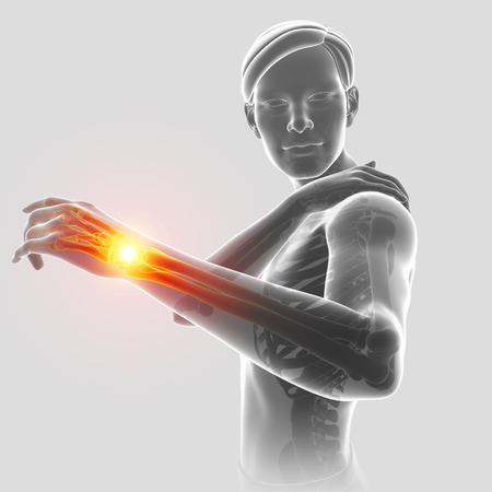 the topics: 3d Illustration of Male Feeling the Shoulder Pain Stock Photo