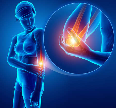 3d Illustration of Women Feeling Elbow pain Stock Photo