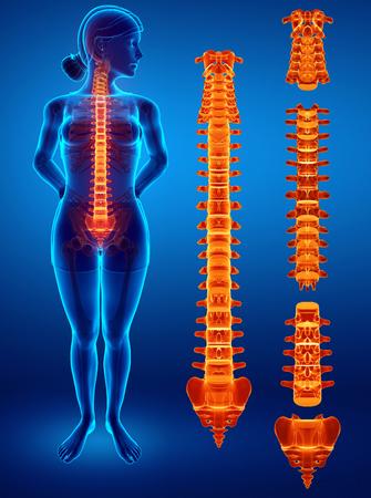 3D Illustration of Female Feeling the back pain