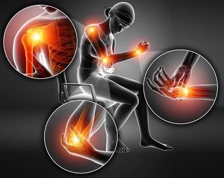 3d Illustration of Female Feeling Arm joint pain