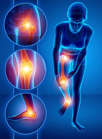 3d Illustration of Female feeling Leg pain