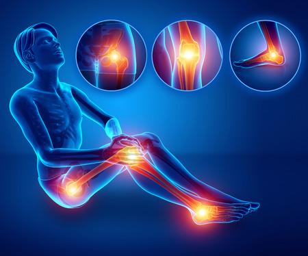 3d ilustracja męskiego odczuwania bólu nóg