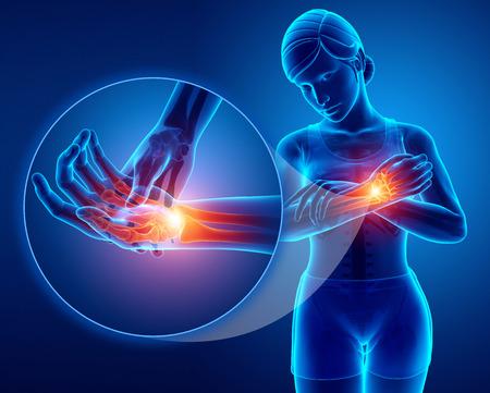 3d Illustration of Women Feeling wrist pain