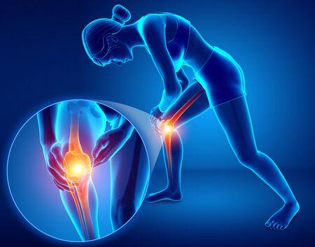 3d Illustration of Female feeling Knee pain