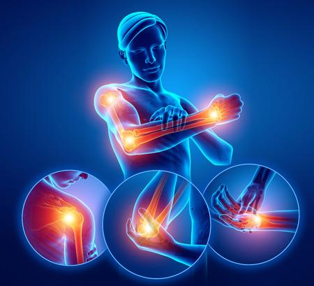 3 d イラストの男性感腕関節痛