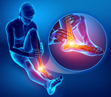 발목 통증과 남성 발의 3d 일러스트