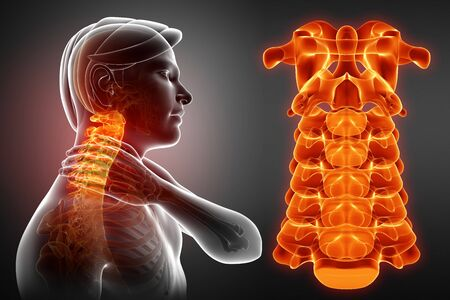 man back pain: 3d Illustration of male Feeling the Neck Pain