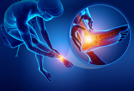 ortopedia: 3d ilustración de pie masculino con dolor en el tobillo