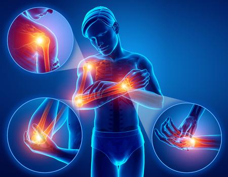 팔 관절 통증을 느끼는 남성의 3d 그림