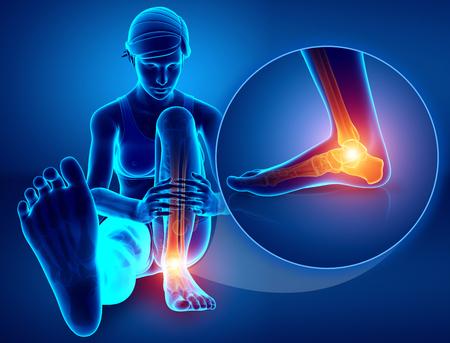 ortopedia: 3d ilustración de pie Mujer con dolor en el tobillo Foto de archivo
