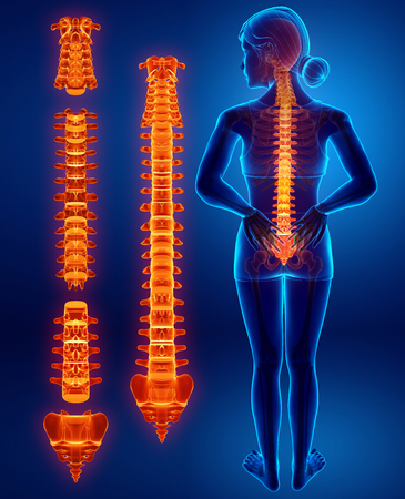 3D Illustration of Female Feeling the back pain