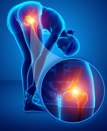 3d Illustration of Female with Hip pain