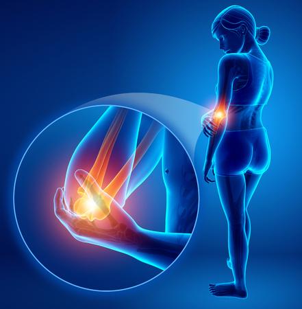 3d Illustration of Women Feeling Elbow pain Stock Photo