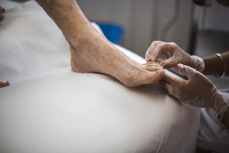 dedo meÑique: médico podiatra curando un pie paciente anciano Foto de archivo