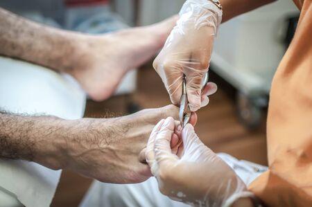 dedo meÑique: médico podiatra curando los pies de un paciente joven