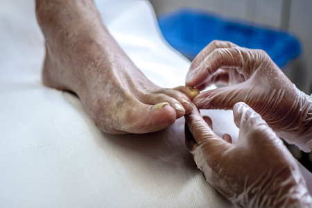 dedo meÑique: podiatry doctor curing an elderly patient foot Foto de archivo