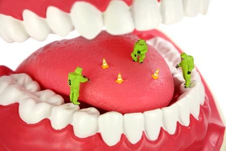 tufo: Concepto de mal aliento. Equipo del HAZMAT de miniatura inspecciona una lengua buscando el origen de los olores de mal aliento.
