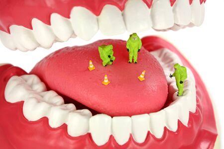 olfato: Concepto de mal aliento. Equipo del HAZMAT de miniatura inspecciona una lengua buscando el origen de los olores de mal aliento.