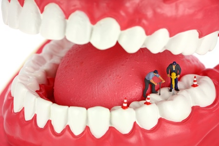 Miniature workers drill a tooth.
