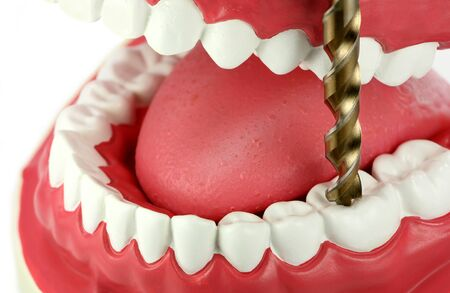 A giant drill bit is drilling a tooth with tooth decay. Fear of dentists concept. Stock Photo