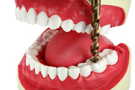 A giant drill bit is drilling a tooth with tooth decay. Fear of dentists concept. photo
