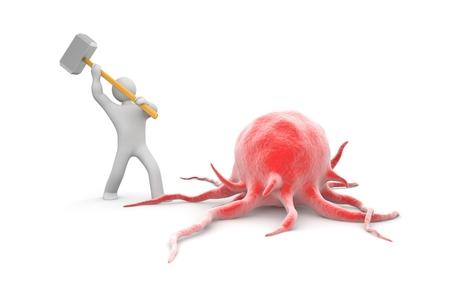 がん医療の概念との戦い 写真素材