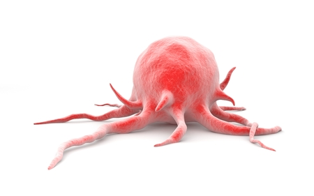 brain cancer: Cancer cell Stock Photo