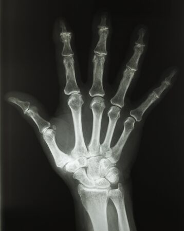 X-Ray of Human Hand From the Top View with Fingers Spread Out.