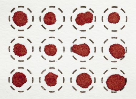 dry blood spots on a fiber filter for laboratory analysis Zdjęcie Seryjne