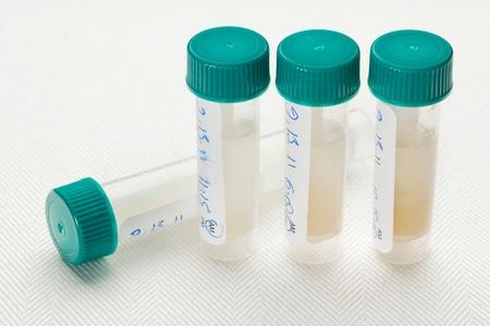 probeta: muestras de saliva en tubos de plástico recogidas en otra hora del día para el análisis de laboratorio perfil hormonal Foto de archivo