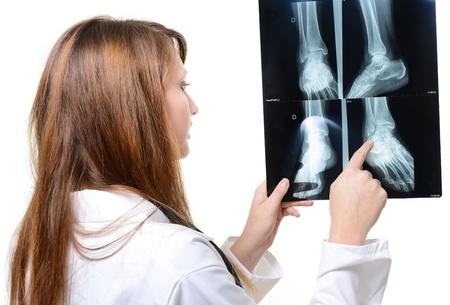 白い背景の上の手で x 線を持つ女性医師