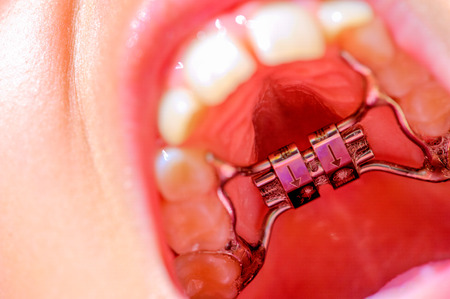 Close up of a lingual braces