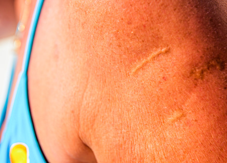 scars: Detailed of sucsess operation with Scars at shoulder