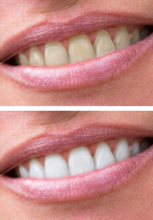 close up of woman teeth bleaching treatment, before and after.