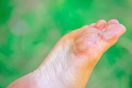 closeup on dry dehydrated skin on the heels of female feet with calluses Reklamní fotografie