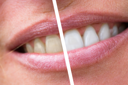 dental calculus: close up of woman teeth bleaching treatment, before and after.