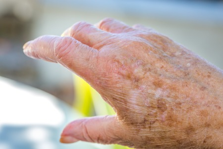 torment: hands of an elderly woman with eczema or allergic skin problems Stock Photo