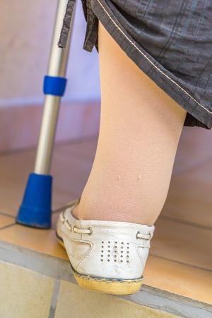 autonomia: mujer con discapacidad de edad con una muleta uso de medias de compresión para mejorar la circulación sanguínea en las piernas Foto de archivo