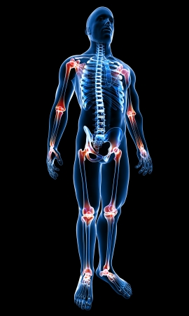 dolor: 3d rindió la médica de rayos X ilustración de la anatomía del cuerpo masculino con dolor en las articulaciones Foto de archivo