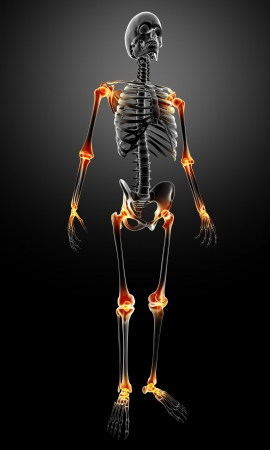 3d rendered medical x-ray illustration of X-ray with joint pain anatomy illustration