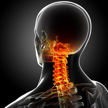 neck pain: 3d rendered medical x-ray illustration of Human Neck pain anatomy