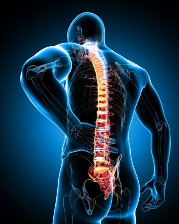 bol: ból pleców Zdjęcie Seryjne