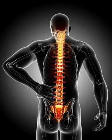 muscle tension tense: back pain in black Stock Photo