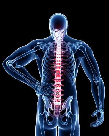 Back pain anatomy Stock Photo - 13757554